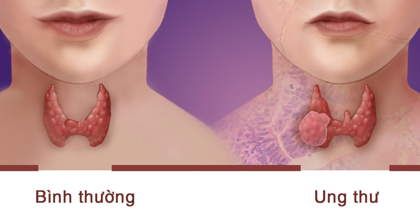 Kết quả hình ảnh cho ung thư tuyến giáp